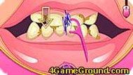 Восстанавливаем зубы