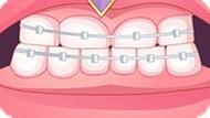 Игра Лечить Зубы: Плохие Зубы