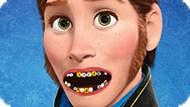 Игра Холодное сердце: Ханс у дантиста