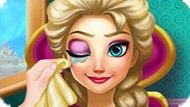 Игра Холодное сердце: Лечение глаз Эльзы