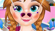 Игра Холодное сердце: Лечить нос Анны