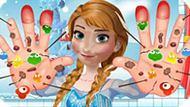 Игра Холодное сердце: Лечить руки Анны