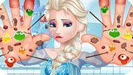 Игра Холодное сердце: Лечить руки Эльзе