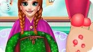 Игра Холодное сердце: Лечить стопу Анне