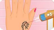 Игра Лазерное Удаление Татуировки
